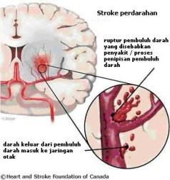 Obat Herbal Stroke Ringan